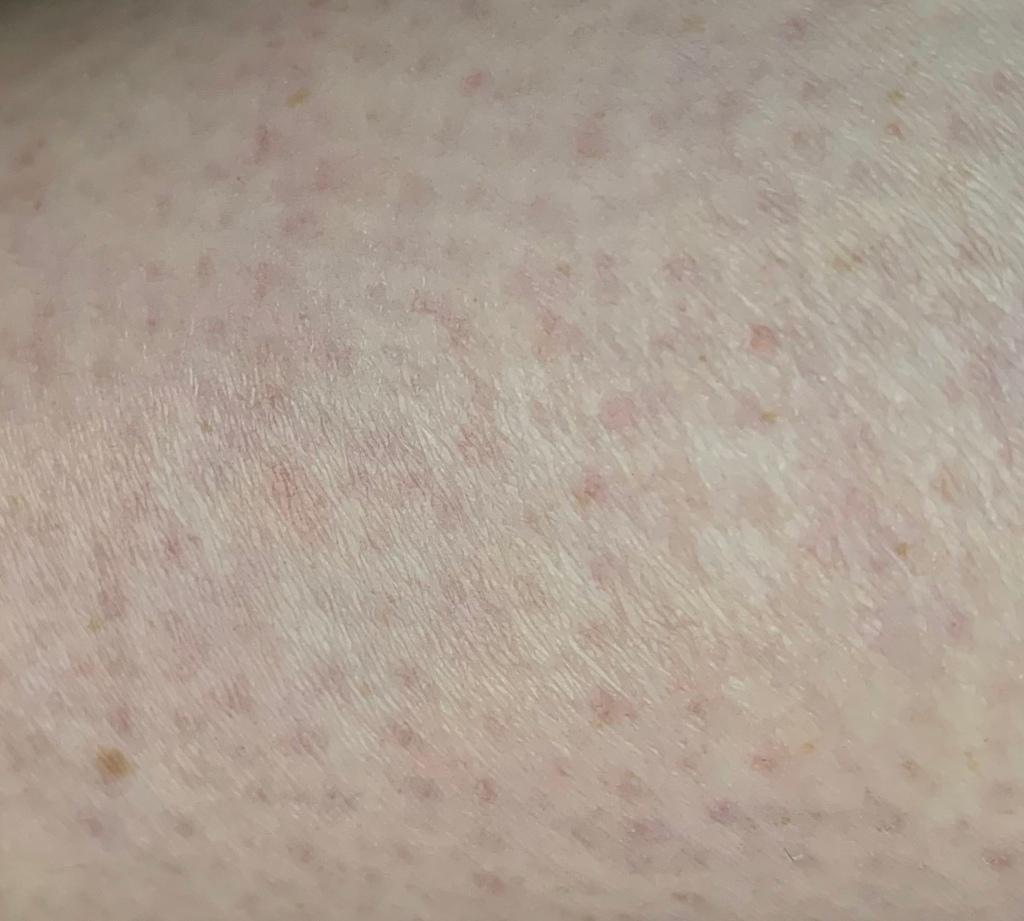 Keratosis Pilaris on the back of a leg